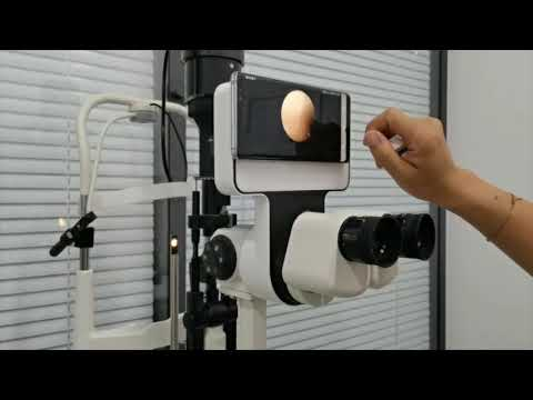 The Newest Slit lamp Imaging Module