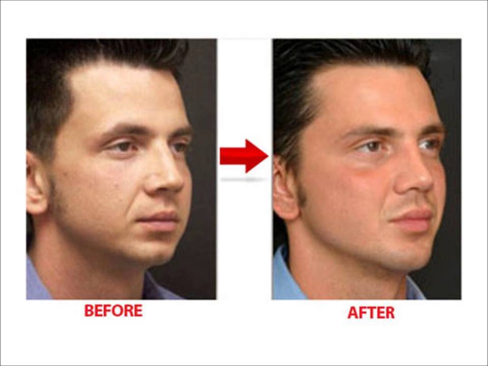 fastest way to lose fat on face