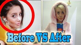 Sahar Tabar Before Surgery Pictures - Irani Teen Look Like Angelina Jolie After 50 Surgeries