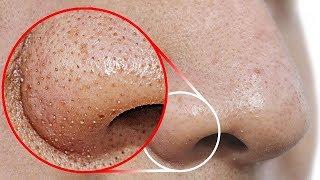 Haz esto para remover los puntos negros de tu nariz
