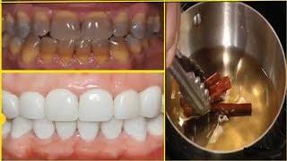 Cách đơn giản ngay tại nhà giúp Răng xỉn màu, ố vàng trở nên Sáng Bóng ngay tức khắc (Teeth white)