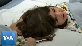 Twins Conjoined at the Head Undergo Successful Surgery in Britain