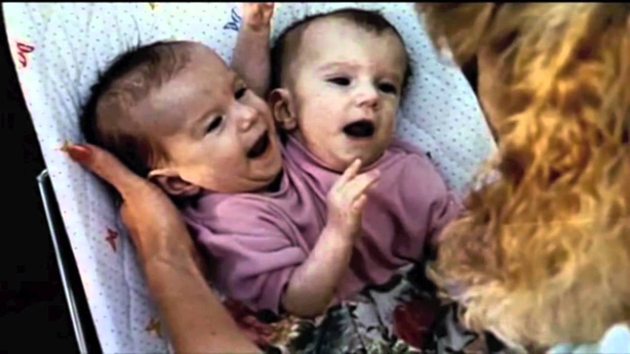 Conjoined Twin Posse - Brittany & Abby - YouTube