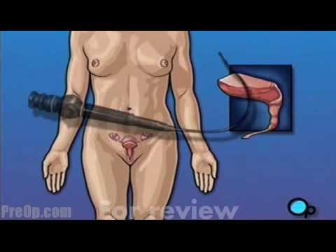 Laparoscopic Removal of Cyst (cystoscopy)