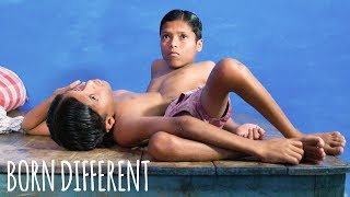 World Famous Conjoined Twins Turn 18 | BORN DIFFERENT