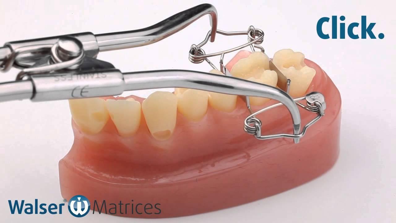 Walser 174 Sectional Matrix System Application O Form Dental