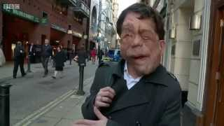 The Ugly Face of Disability Hate Crime  - BBC Documentary