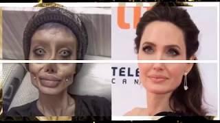 Sahar Tabar :Cette fan a subi plusieurs opérations pour ressembler à Angelina Jolie