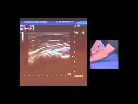 Baixar Simpósio Esaote de US Musculoesquelético - Cotovelo - Prof. Dr. Renato Sernik - Parte IV