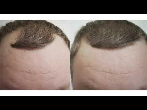 Best Laser Hair Growth Device | 844-454-4377