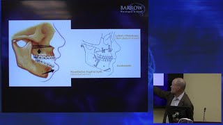 How Jaw Surgery is Performed