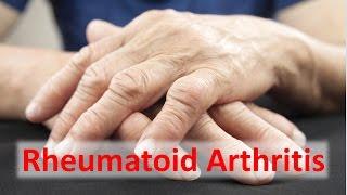 Rheumatoid Arthritis Solutions