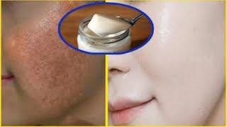 Nám da, đốm đen chi chít cũng hết sạch, nhờ phương pháp đơn giản này (Treatment of melasma)