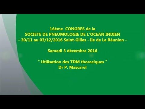 Utilisation des TDM thoraciques. Dr P. Mascarel Réunion