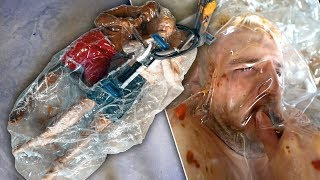 We Vacuum Sealed Our Entire Body In A Zorb Ball And It Went Wrong..