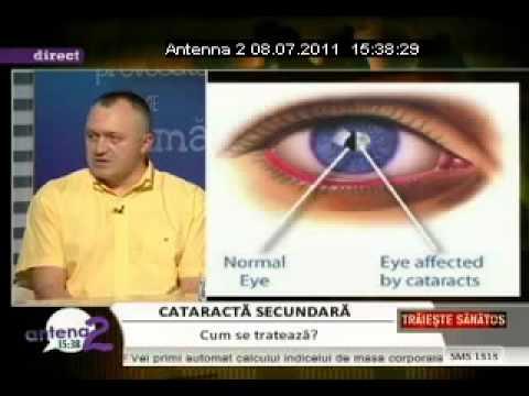 Generalitati, Tipuri si cauze ale cataractei
