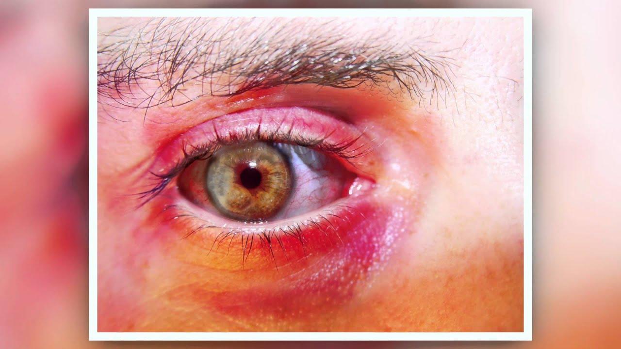 chronic eye tearing in adults