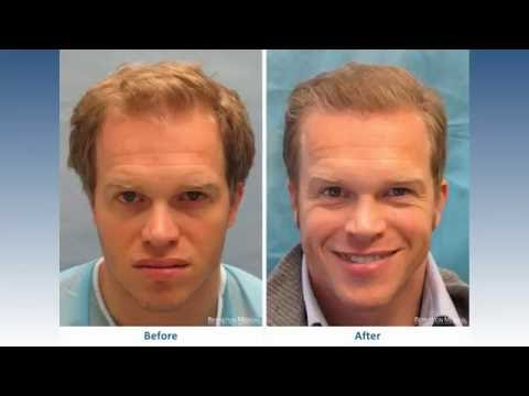 Hair Transplant Before and After: Bernstein Medical Patient ACM