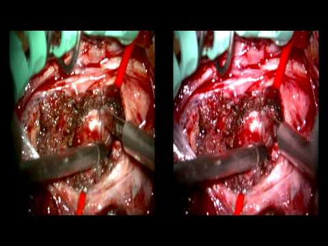 Anterolateral Transforaminal Approach to Dumbbell Schwannoma of the C3 Nerve Root
