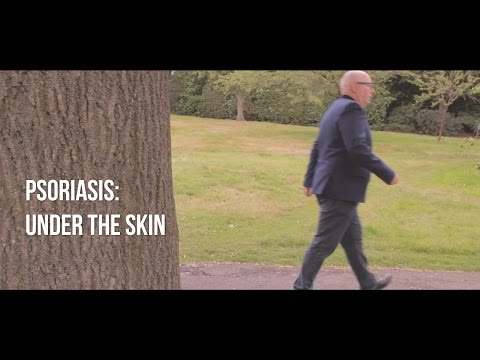 Psoriasis: Under the Skin