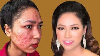 Trang Điểm Che Mụn Dị Ứng Cho Cô Dâu Đẹp Không Tì Vết _ Hùng Việt Makeup