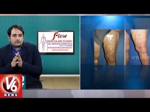Varicose Veins Problem | Symptoms & Treatment | Dr. Abhilash
