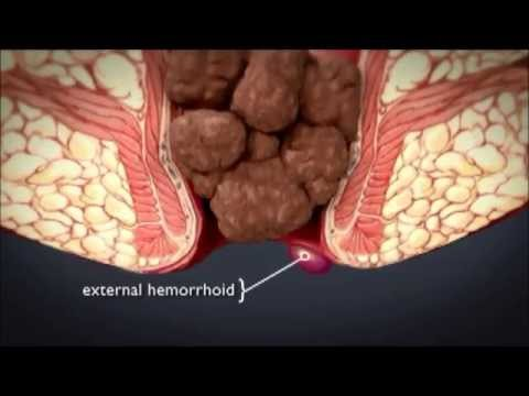 HEMORRHOiDS | What are hemorrhoids ? What is the treatment ...