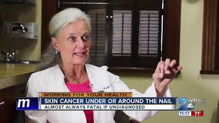 Checking your fingernails for signs of Melanoma