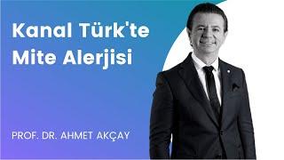 Kanal Türk-Mite Alerjisi