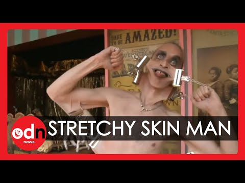 Meet the man with the world's stretchiest skin ... WEIRD ...