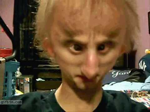 Progeria chicken boy the book