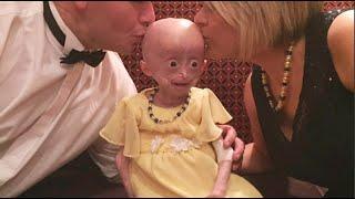 Affetta da progeria la piccola Lucy non ce l'ha fatta. La sua storia ha commosso il mondo