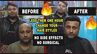 Non Surgical Hair Transplante for Men  Change your hair Style in less then 1 hour   Before & After
