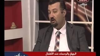 البهاق عند الاطفال على صحتي مع د/ حسن الفكهاني -