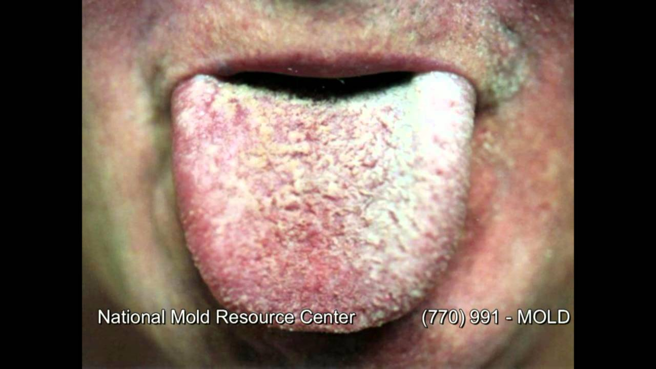 The Symptoms Of Mold Exposure And Mold Illness From Black