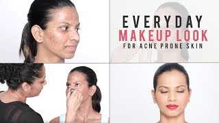 How To Makeup Look For Problematic & Acne Prone Skin | Everyday Makeup Tutorial For Beginners