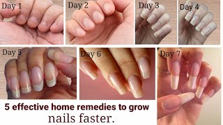 grow nails in just 3 days ||faster nail growth tips || How to grow Nails  faster in one day ||