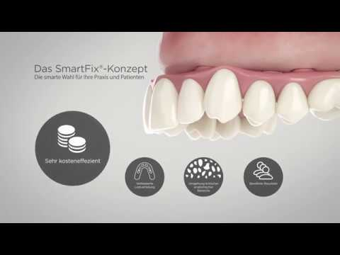 Das SmartFix-Konzept von Dentsply Sirona – Die smarte Wahl für Ihre Praxis uns Patienten