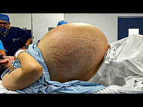 7 Embarazos EXTRAÑOS con Resultados Inesperados