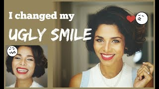 How to IMPROVE AWKWARD SMILE into PICTURE PERFECT Smile/ Without Dentist/ GIVEAWAY