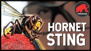 STUNG BY A GIANT HORNET (IN SLOW-MO)