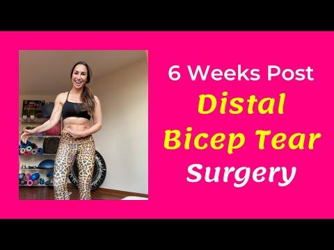 6 weeks post surgical distal bicep tear repair