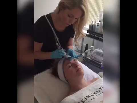 Experience the HYDRAFACIAL at NOVA Plastic Surgery