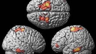Brain Networking among Musicians | Tomorrow Today