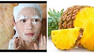 ម៉ាស់ម្នាស់កម្ចាត់មុនគ្មានសល់, pineapple mask soft and remove black spots