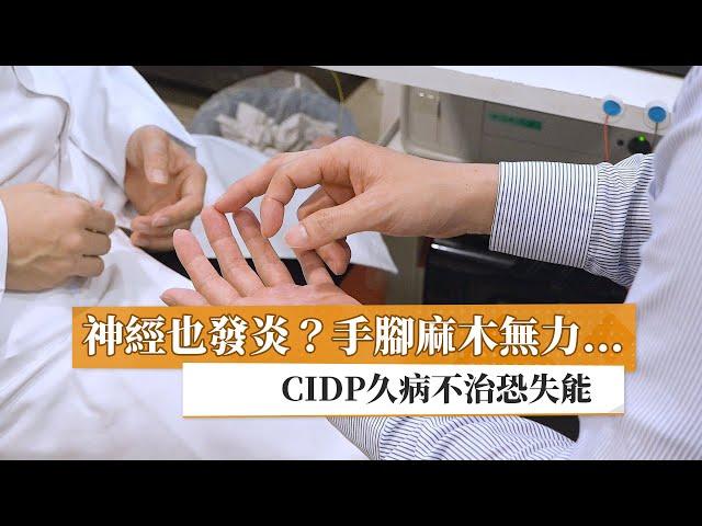 神經也發炎?手腳麻木無力… CIDP久病不治恐失能