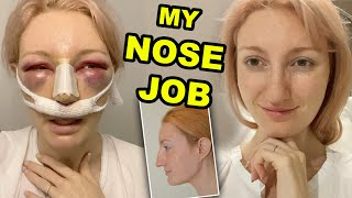 MY NOSE JOB | PART 1 | RHINOPLASTY & SEPTOPLASTY SURGERY & RECOVERY 2020