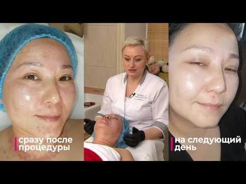 Фракционная мезотерапия лица и шеи  Результат До и После photo