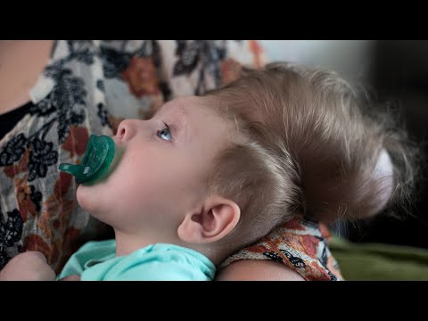 Bentley's Second Chance | Boston Children's Hospital