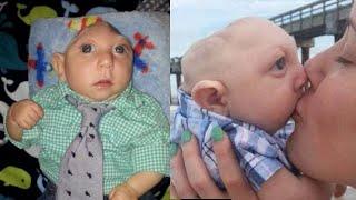 Top 6 Bebés Que NO Creerás Que Existen